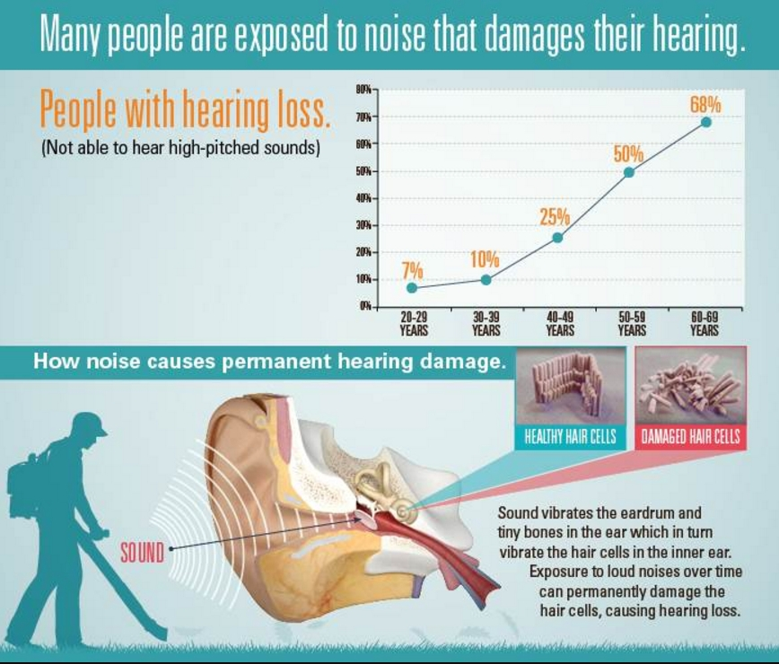Info Graphic Showing Hearing Loss. Dominick Servedio AuD